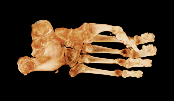 view 3 bones of foot.png