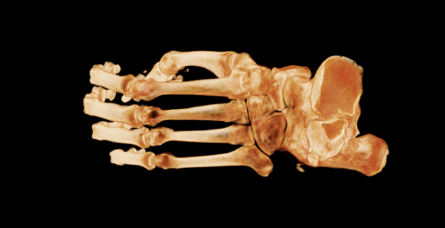 view 4 bones of foot top-down.png